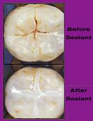 Fissure Sealant | Woodward Dental