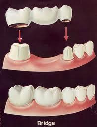 Dental bridges information | Woodward Dental