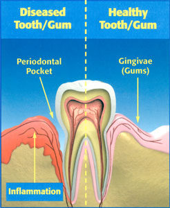 Gum (Periodontal) Disease Information | Woodward Dental