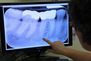 Digital Dental X-Ray Technolocy | Woodward Dental