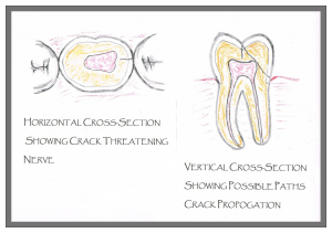 Treating a cracked tooth diagram | Woodward Dental