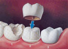 Tooth crack repair with crown diagram | Woodward Dental