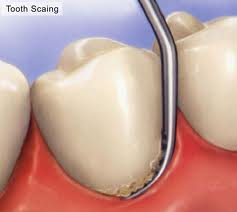 Tooth Scaling | Woodward Dental