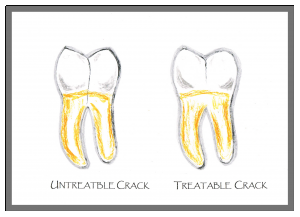 Treating a cracked tooth | Woodward Dental